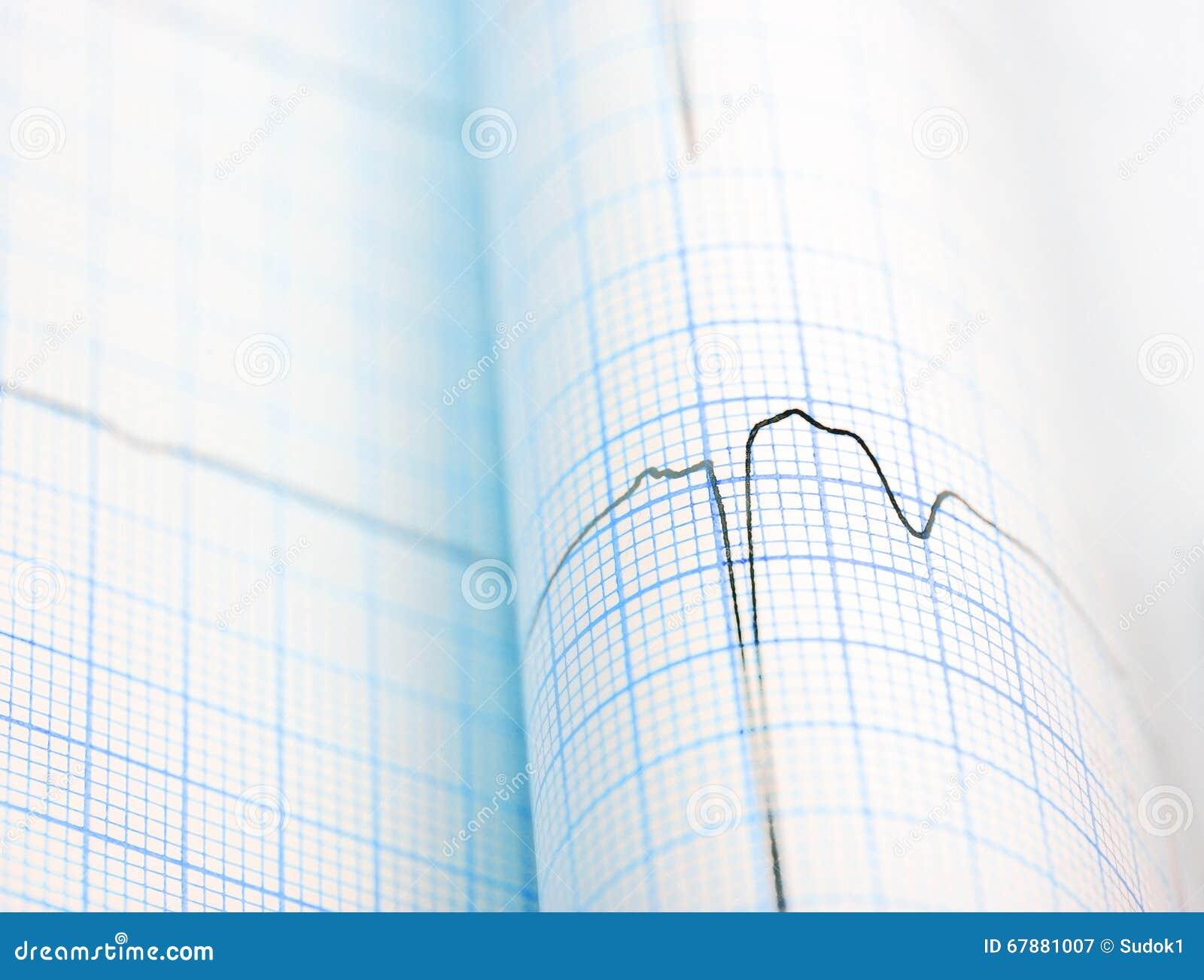 在纸折叠的ECG曲线