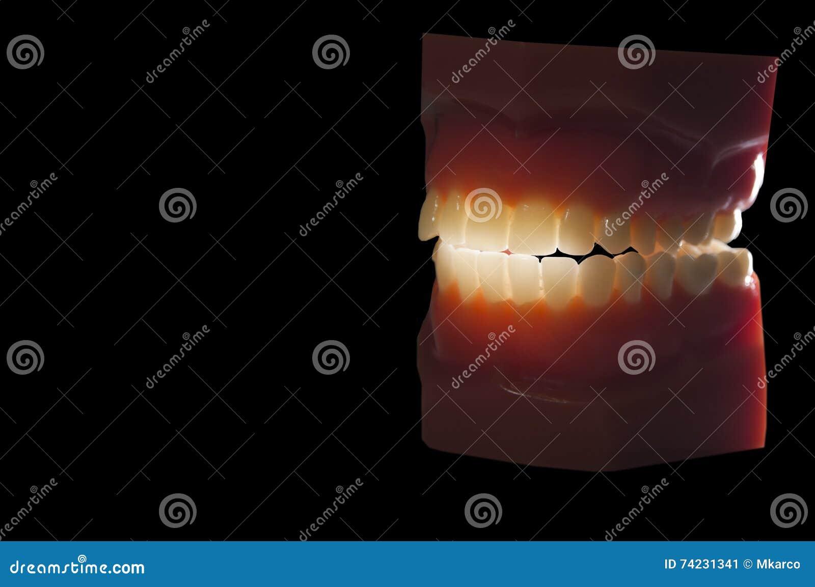 在黑色隔绝的牙齿牙模子背后照明