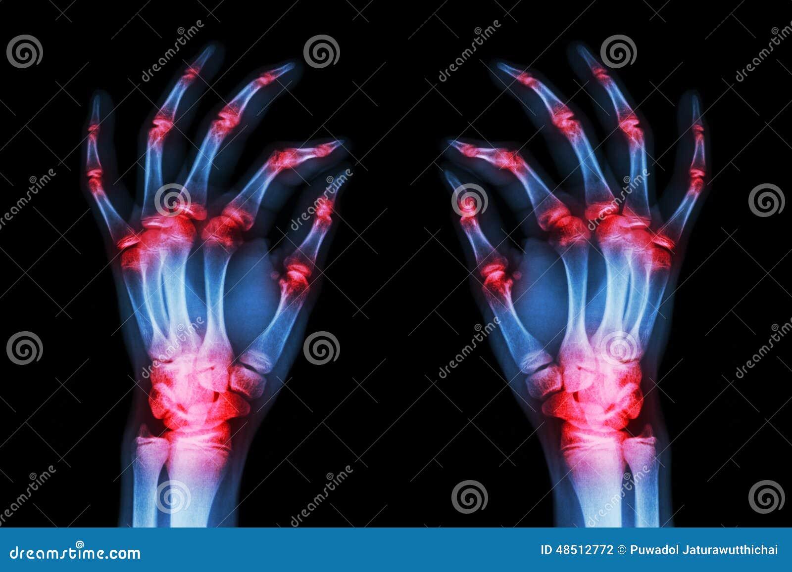 多联合关节炎两只成人手(痛风,类风湿病)在黑背景