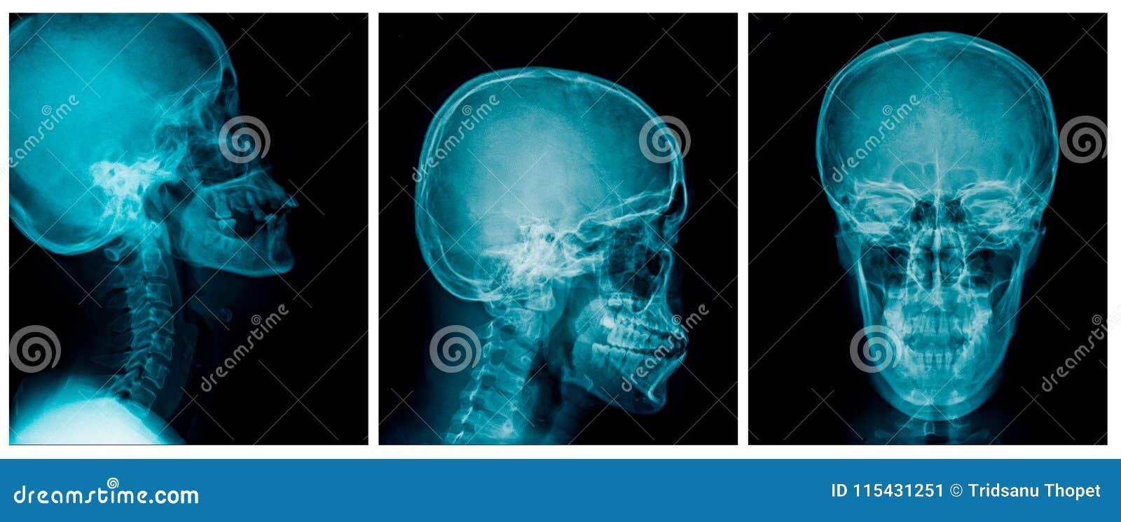 头骨X-射线AP和侧向看法