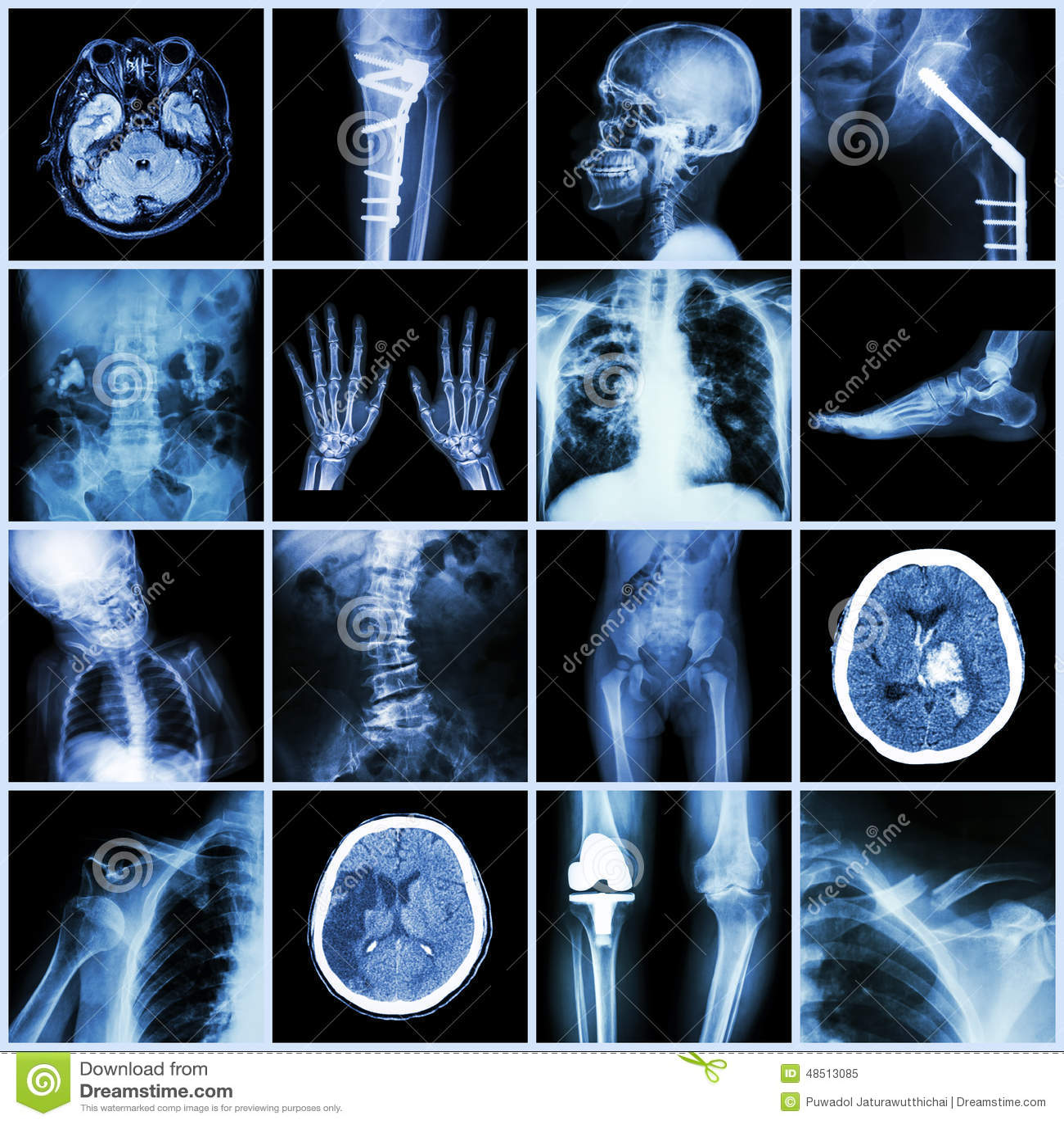套人,多种疾病,矫形,手术的X-射线多个部门