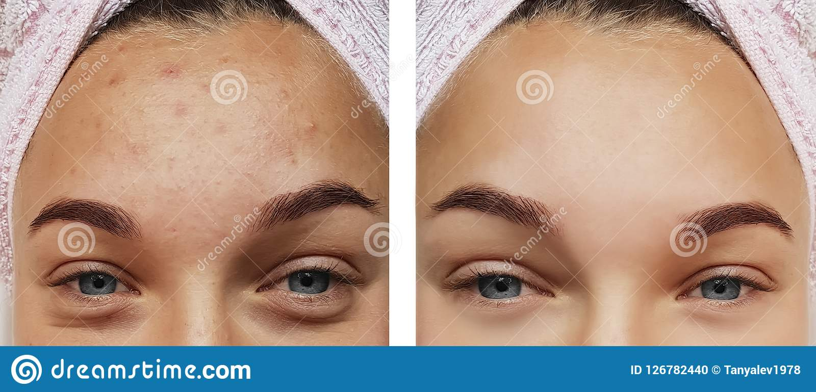 女孩眼睛治疗特写镜头,在做法前后的撤除,疗法粉刺