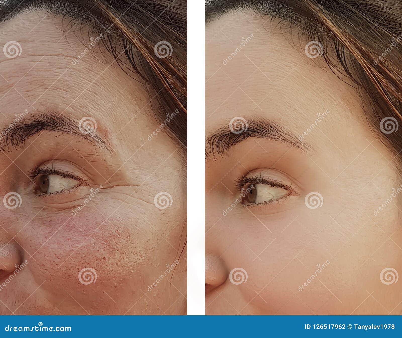 妇女在皮肤学化妆用品做法前后的眼睛皱痕