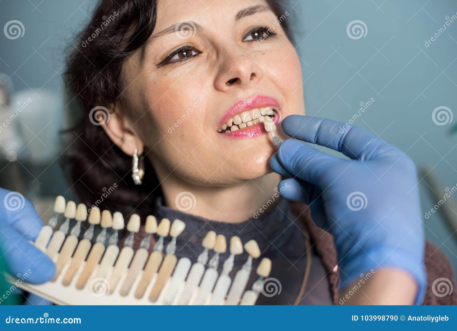妇女特写镜头画象在牙齿诊所办公室 检查和选择牙的颜色牙医 牙科