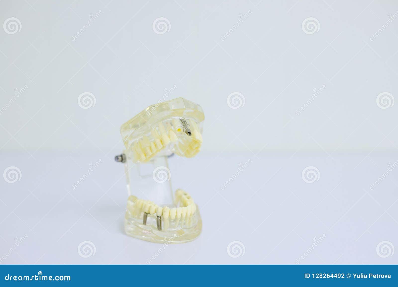 学会教的模型的牙齿牙牙科学生显示牙、根、胶、牙龈炎、蛀牙和匾