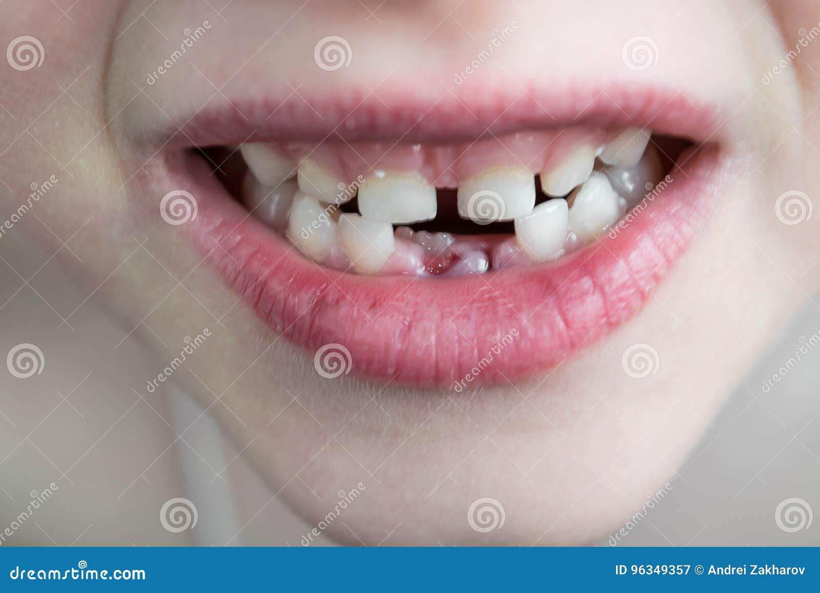 孩子的开放嘴 牙两行  在底部ro