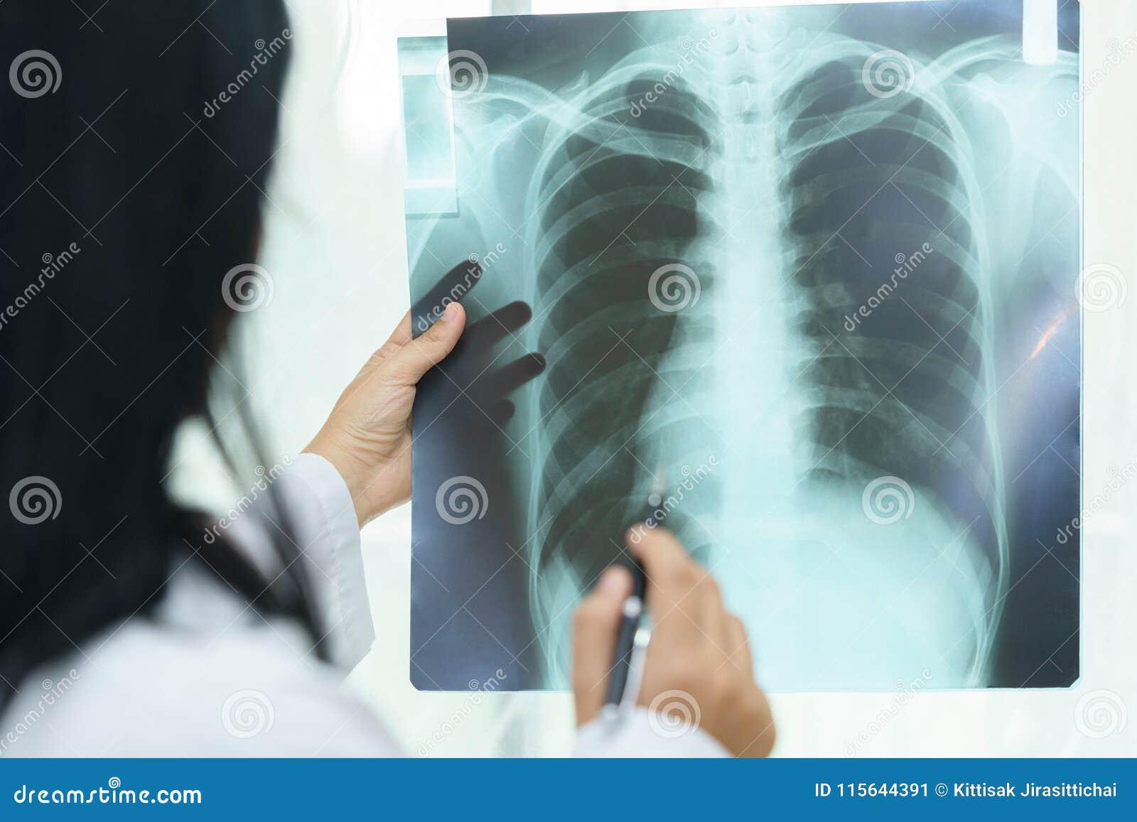 审查关于有X光片的-病的conce肺的女性医生