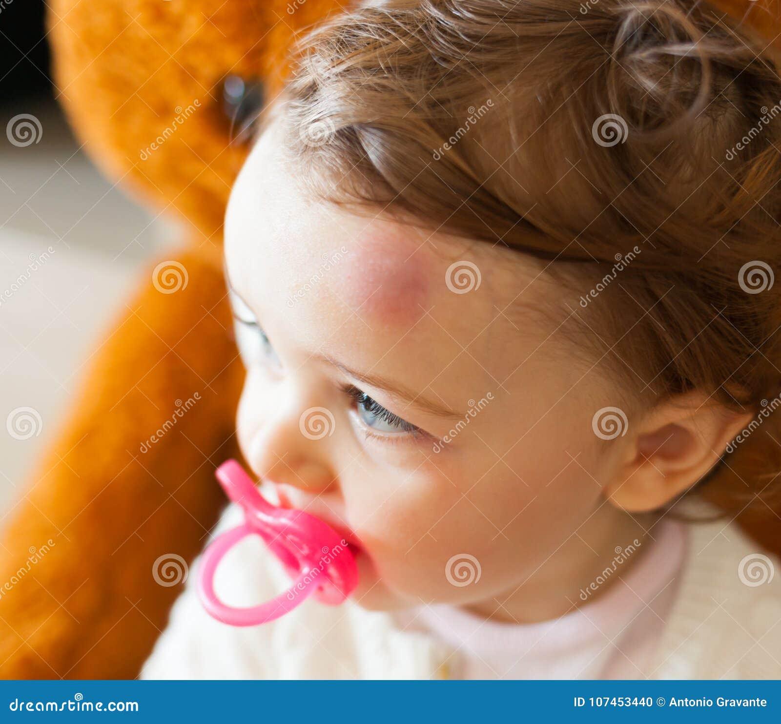 小孩以在他的前额的大挫伤在碰撞以后