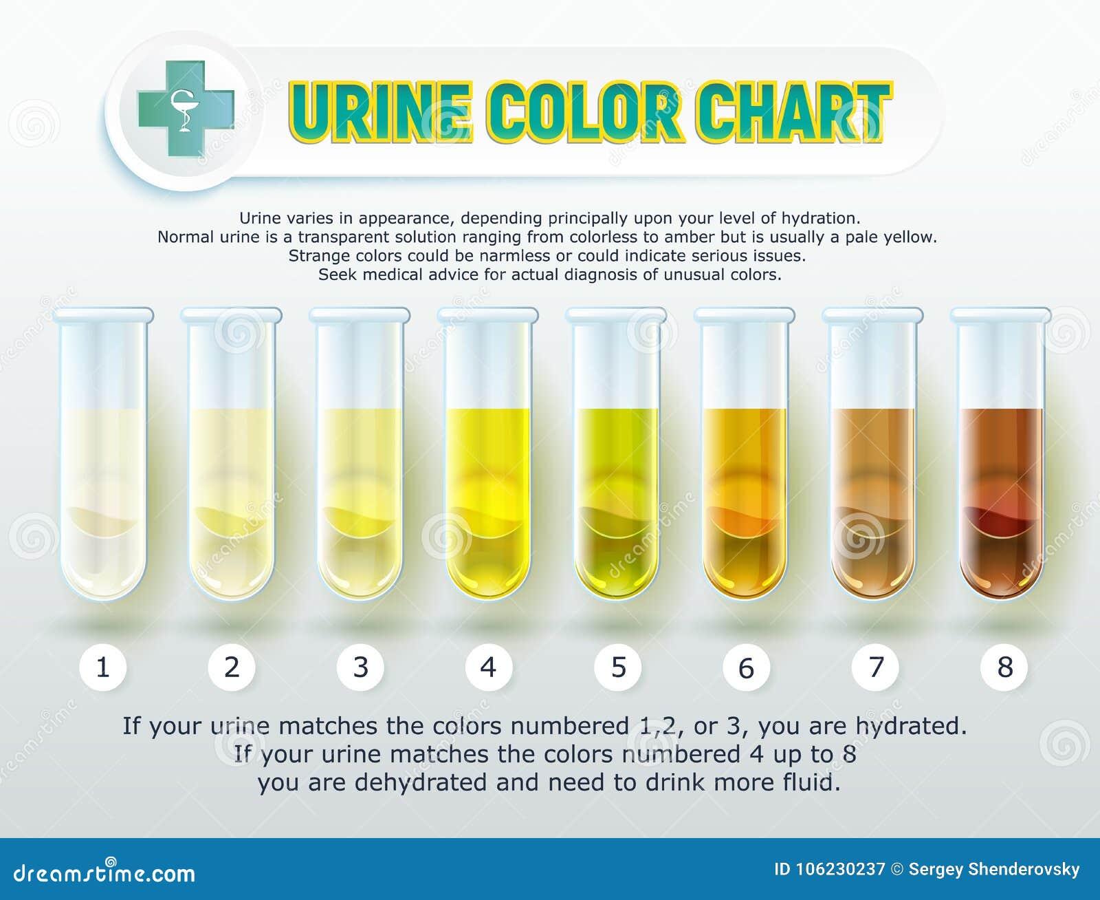 尿颜色图表1