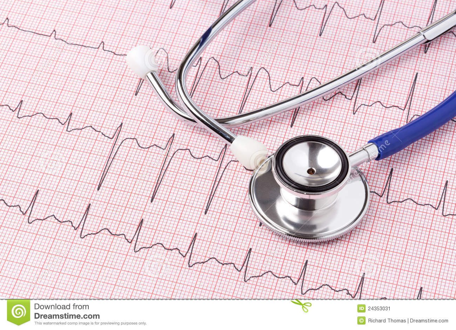 心电图听诊器