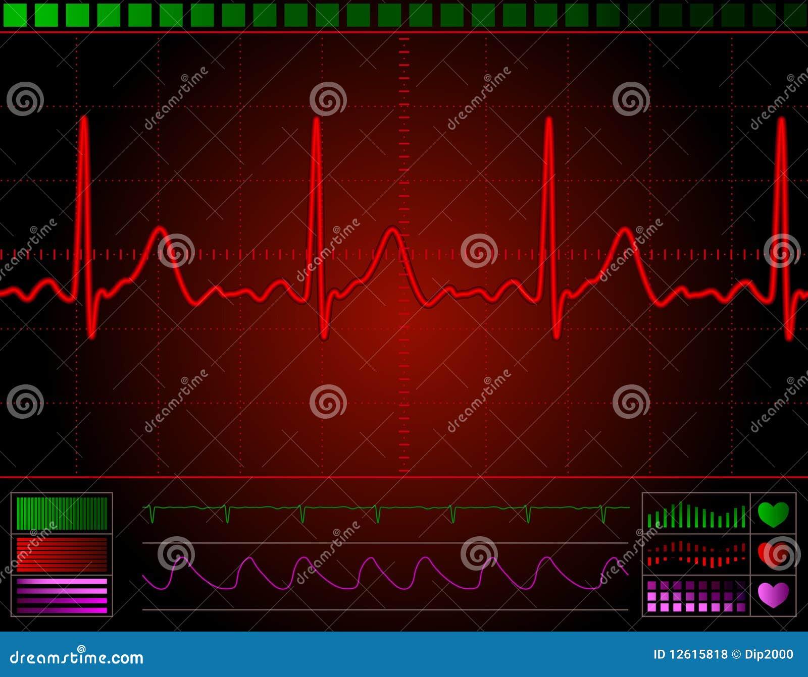心脏监护器屏幕