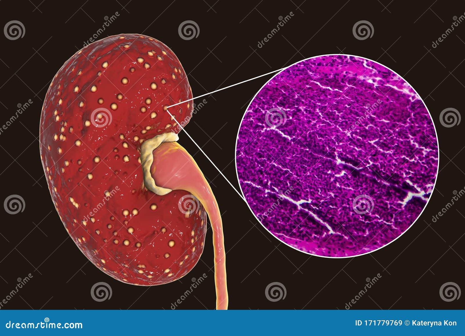腎炎 急性 腎盂