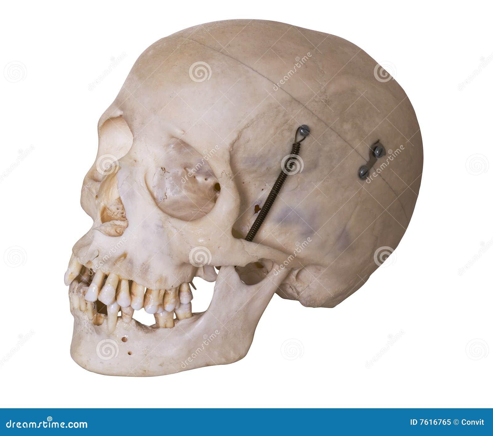 截去的人力路径头骨