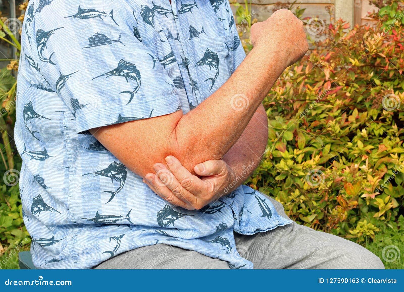 手肘痛苦 关节x线照片 前辈在痛苦中
