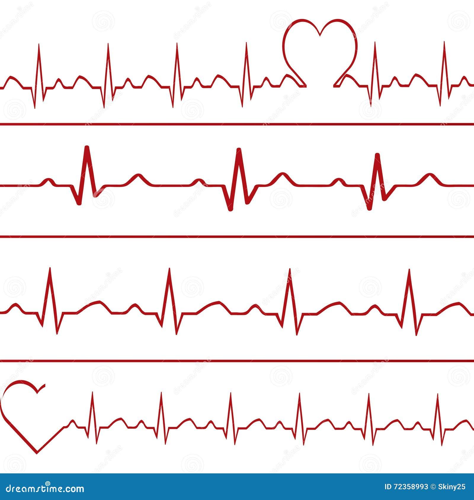 抽象心跳心电图例证