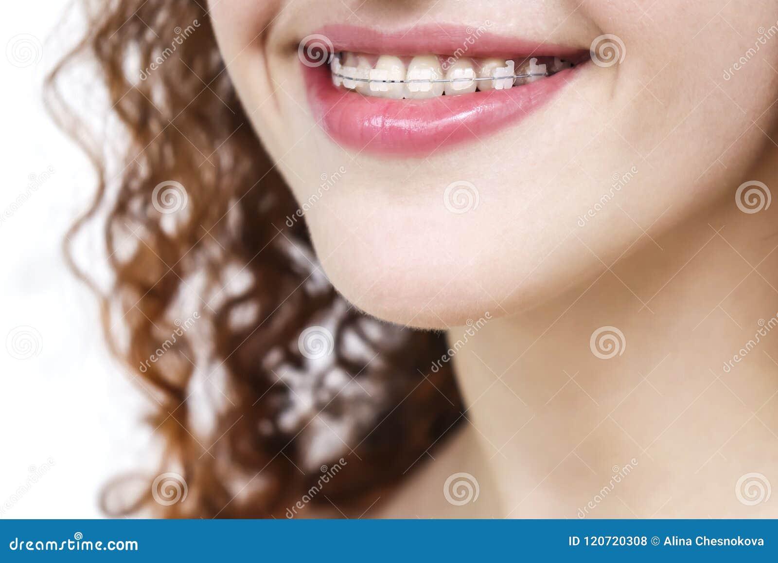 括号的女孩 愉快的微笑关闭