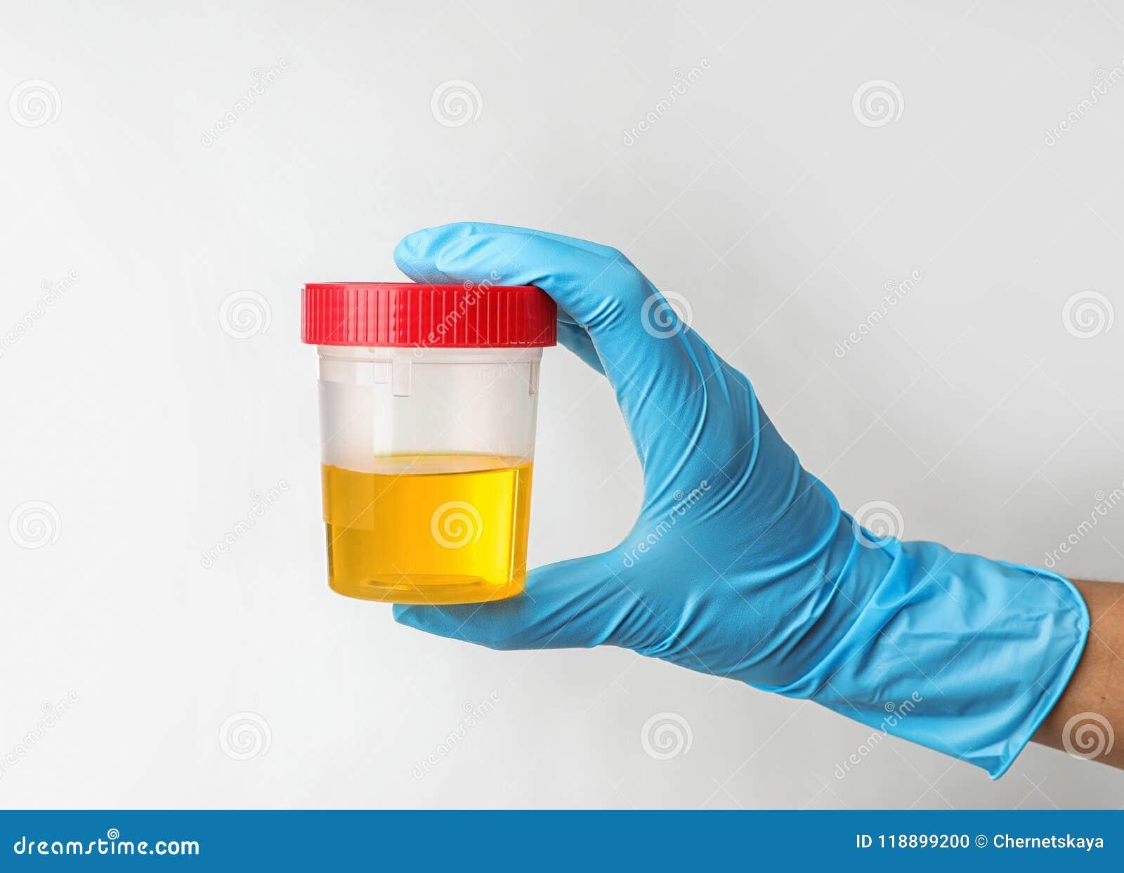 拿着有尿样的工作者瓶子在轻的背景 泌尿学概念