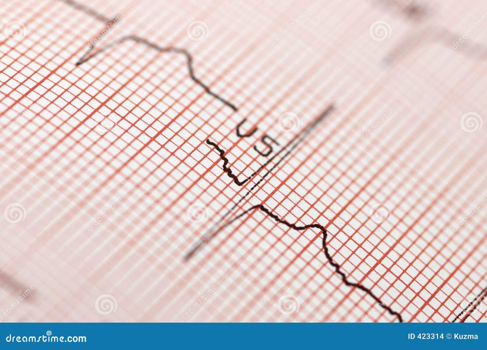 接近的心电图