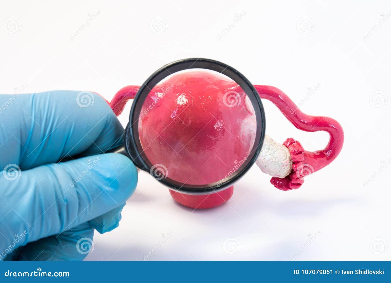 搜寻疾病、子宫或子宫概念照片反常性或者病理学  拿着放大镜的医生和通过它审查