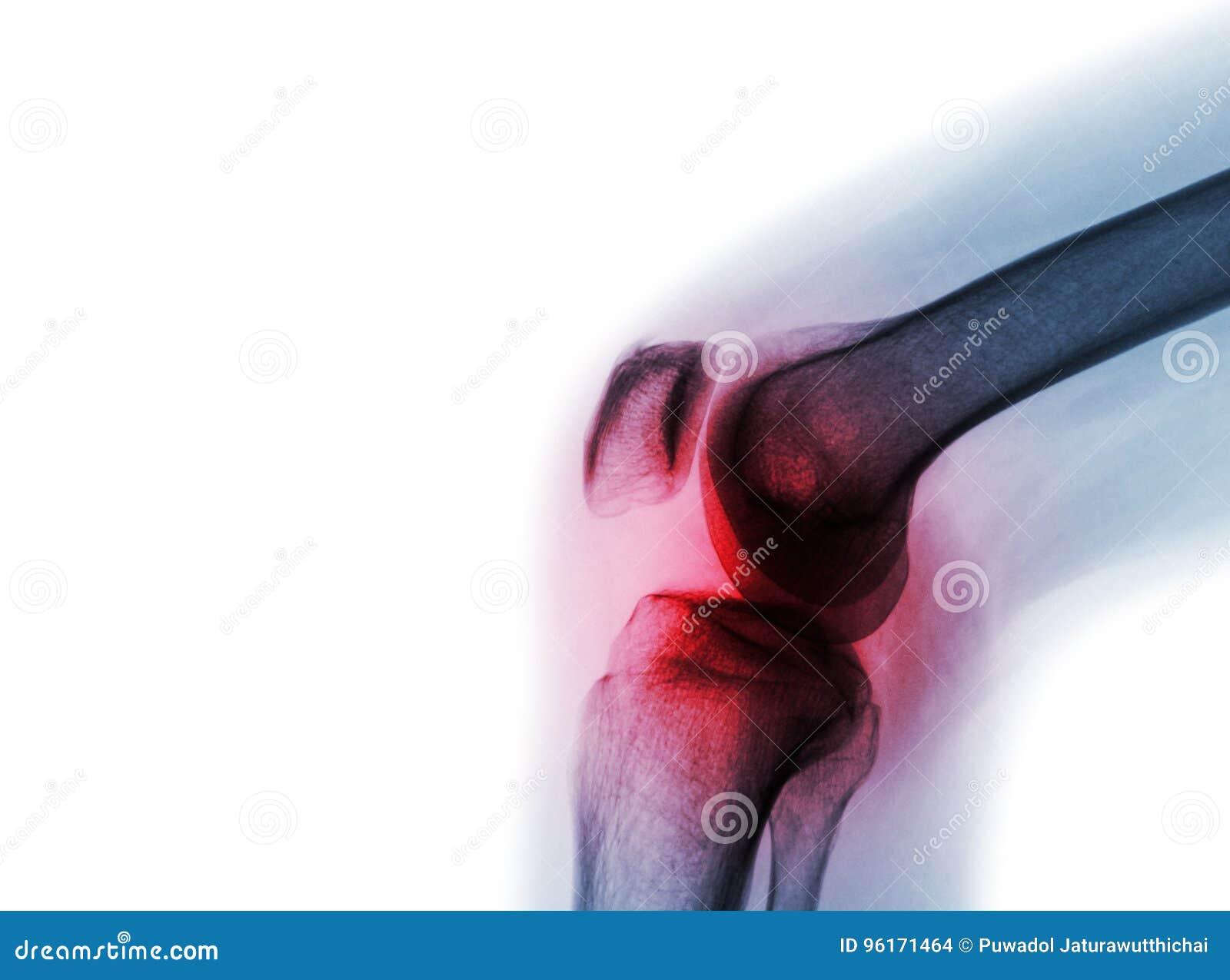 摄制X-射线与关节炎& x28的膝盖关节;痛风、风湿性关节炎、腐败的关节炎、骨关节炎膝盖& x29;