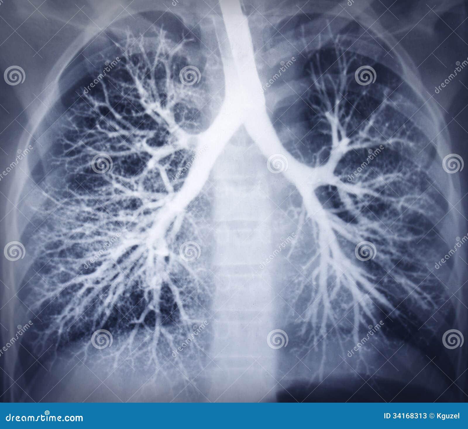 支气管镜检查图象。胸部X光。健康肺