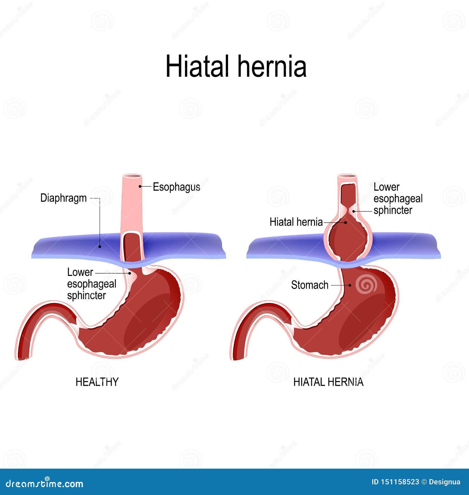 断层结构的疝气 正常解剖学和滑断层结构的疝气传染媒介图