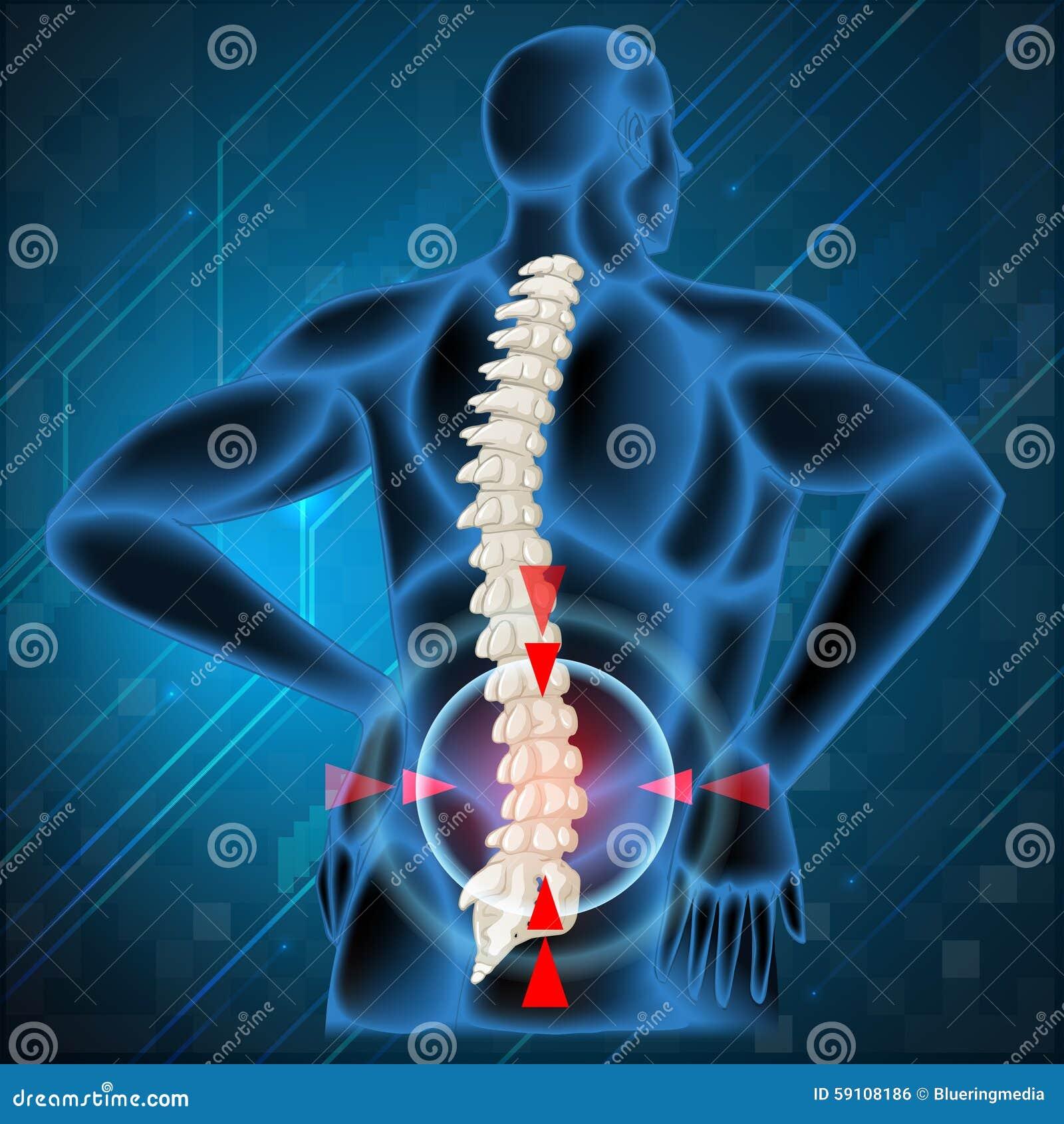 显示背部疼痛的脊椎骨头