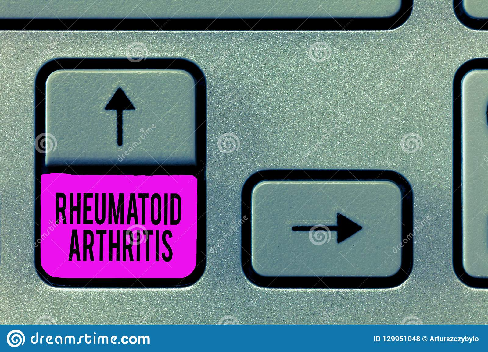 显示风湿性关节炎的文字笔记 陈列可能导致关节痛和的自体免疫病的企业照片