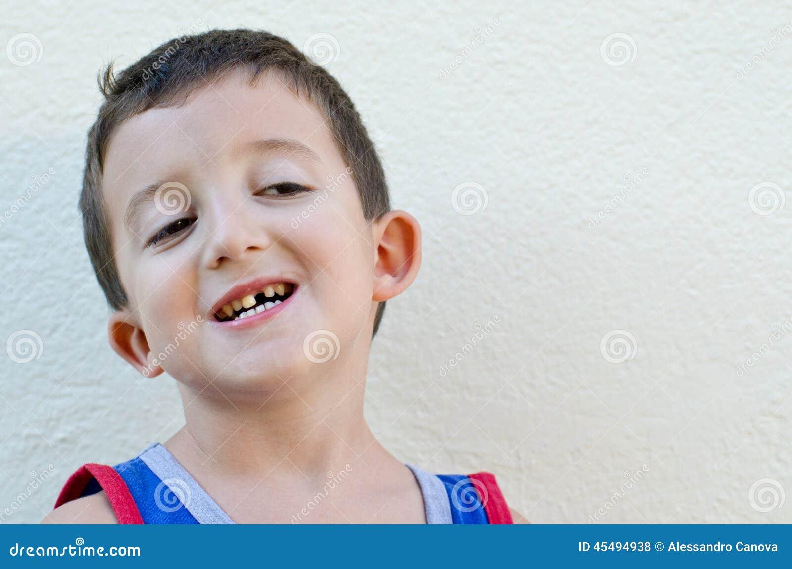 有下落的牙的孩子
