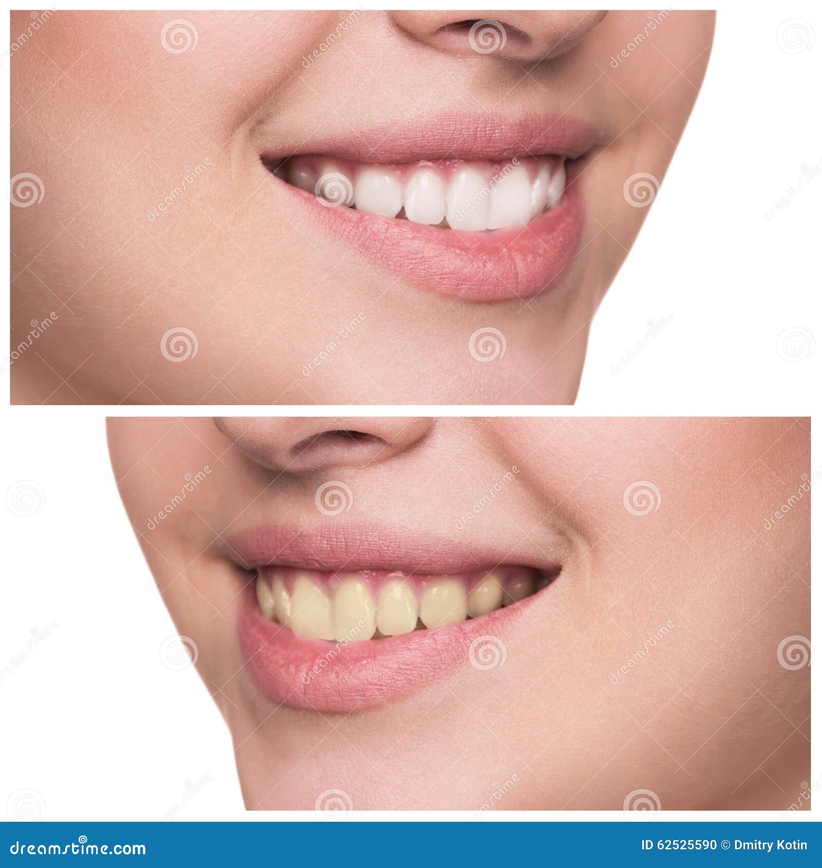 有健康微笑的少妇