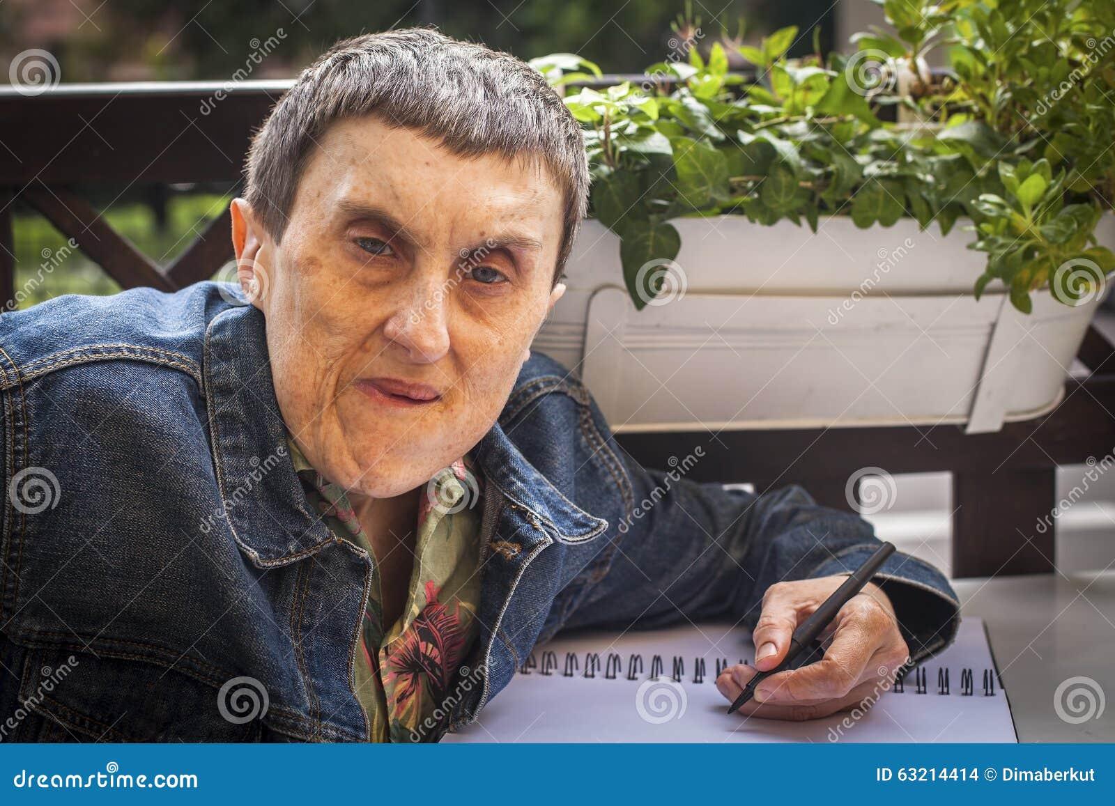 有大脑麻痹的残疾人在笔记本写