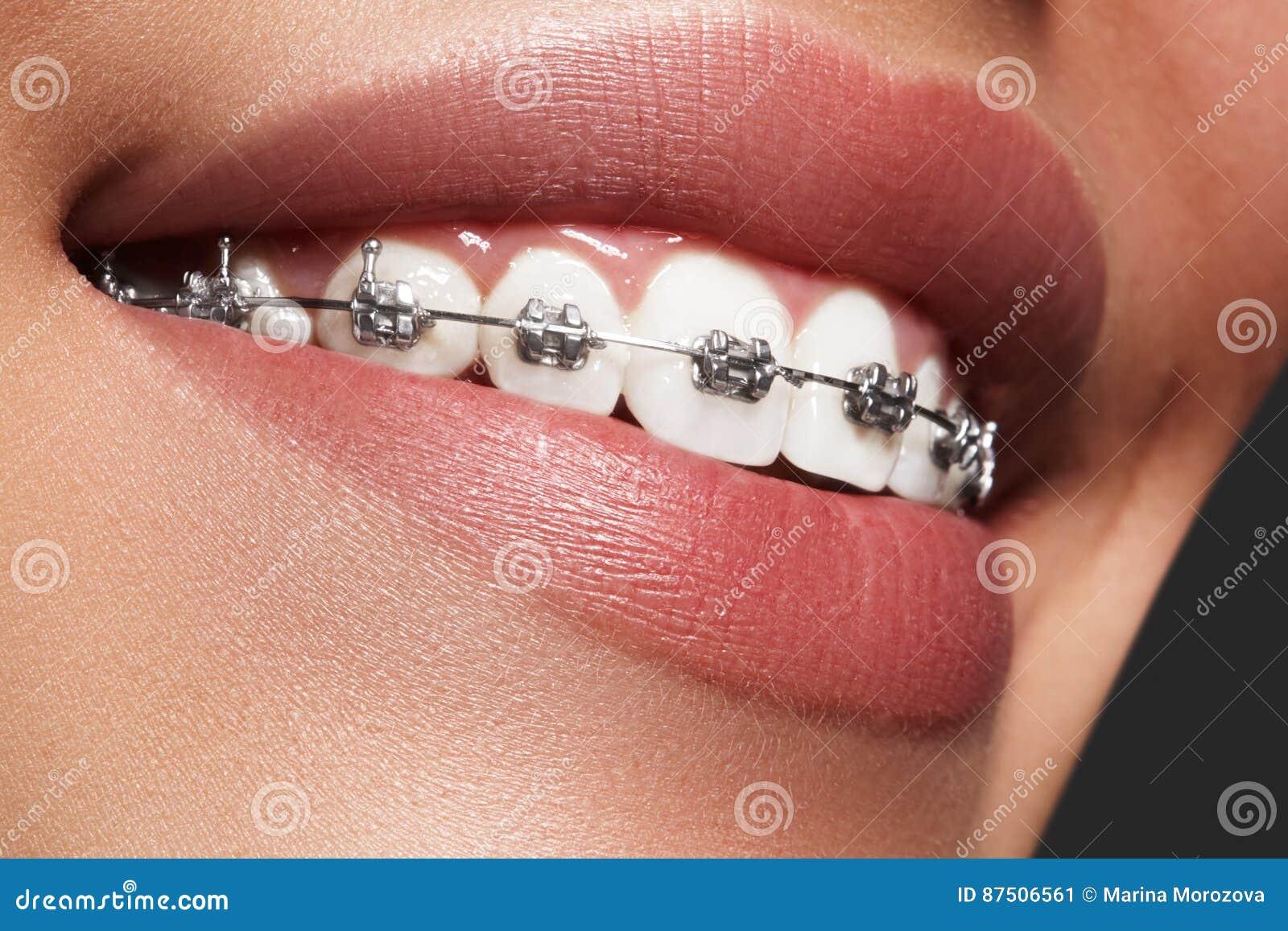 有括号的美丽的白色牙 牙齿保护照片 与ortodontic辅助部件的妇女微笑 畸齿矫正术治疗