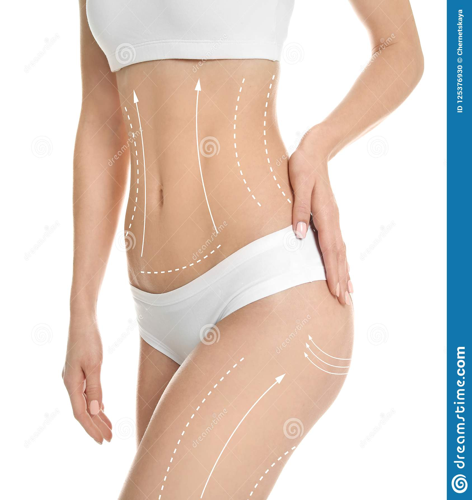 有标记的少妇皮下脂肪切除术操作的