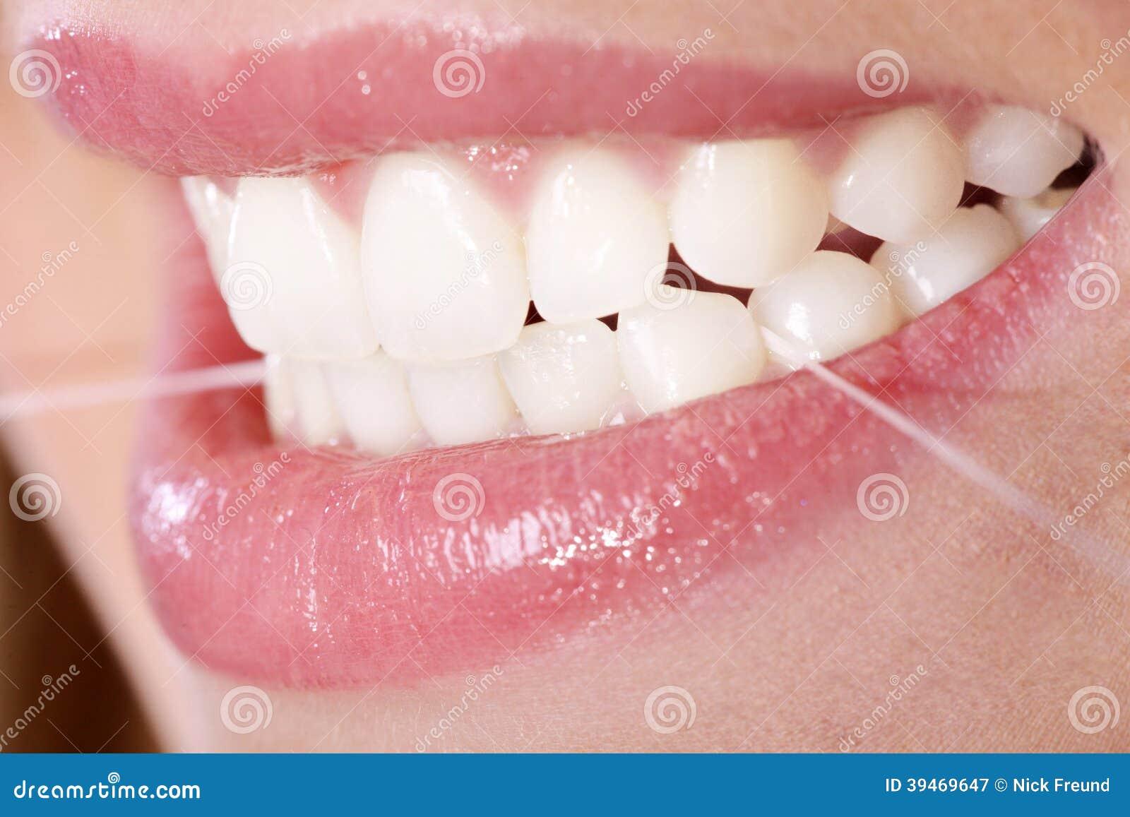 有牙线的牙