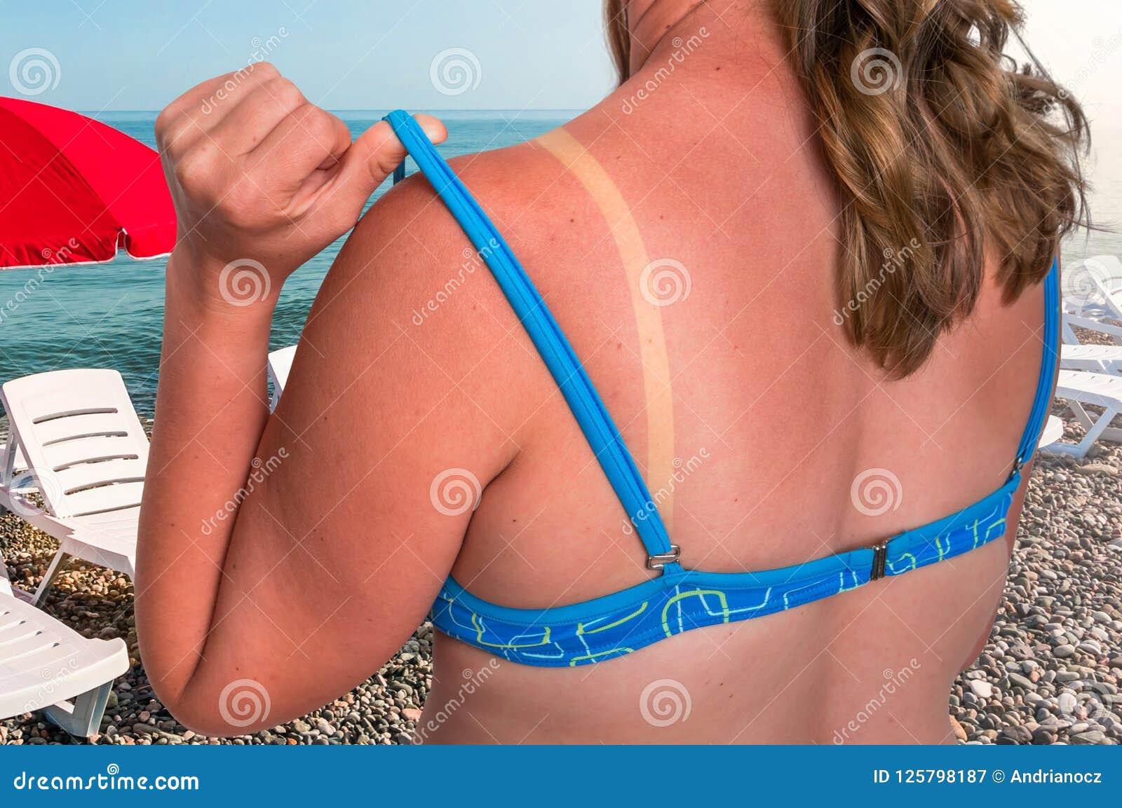 有红色的妇女晒伤了肩膀-晒斑概念