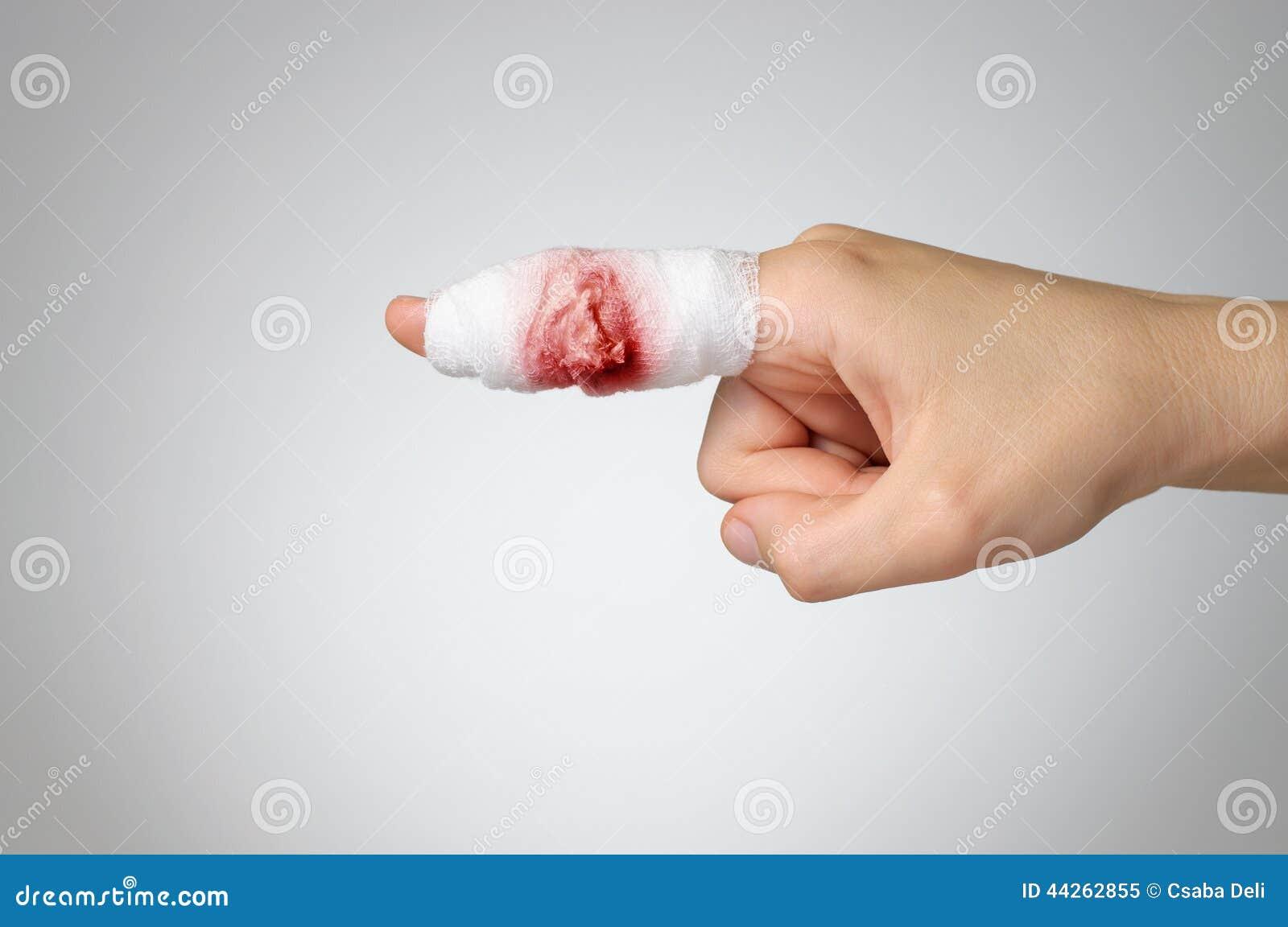 有血淋淋的纱绷带的受伤的手指.