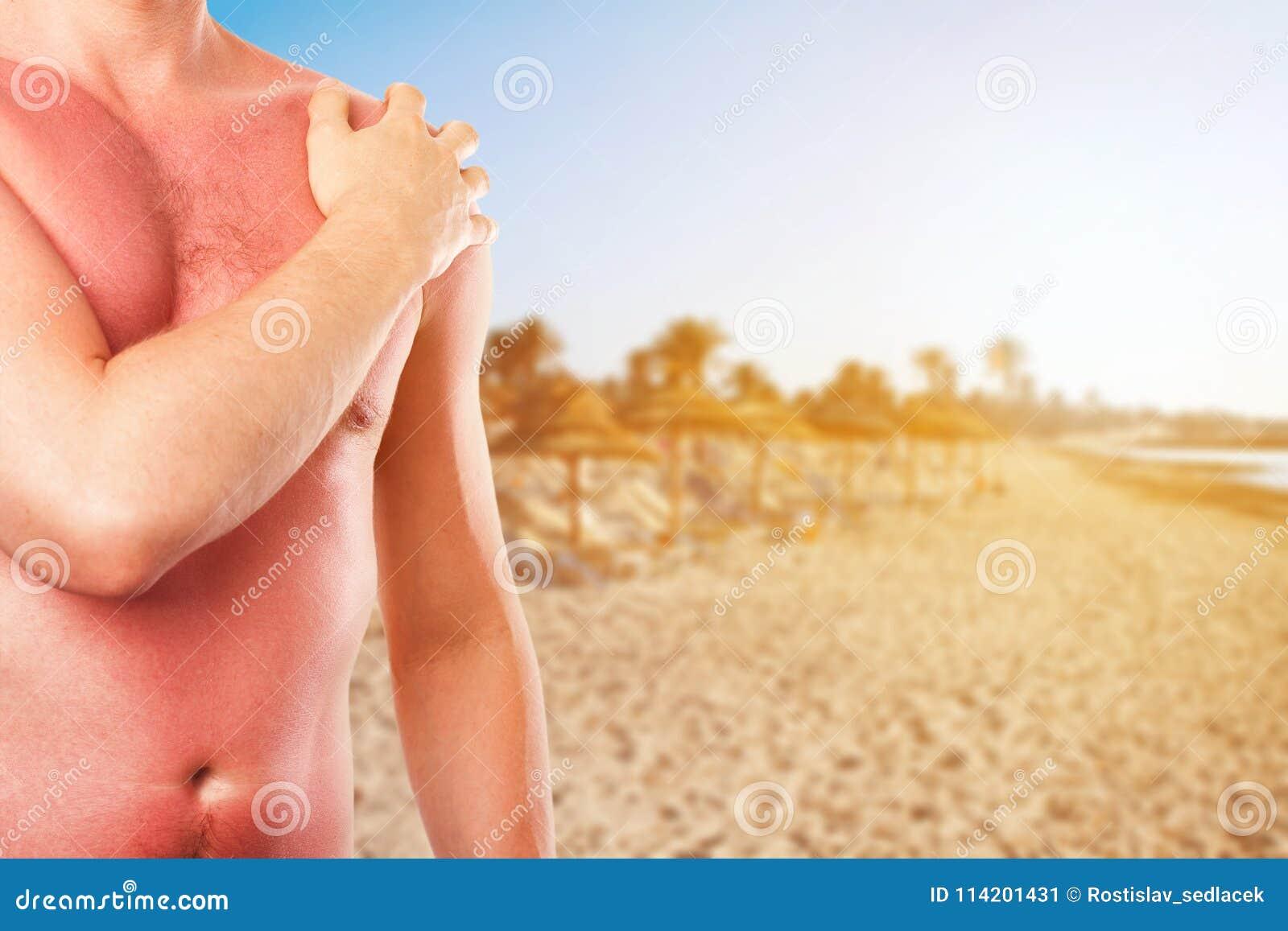 有被晒伤的皮肤的人从在海滩的太阳