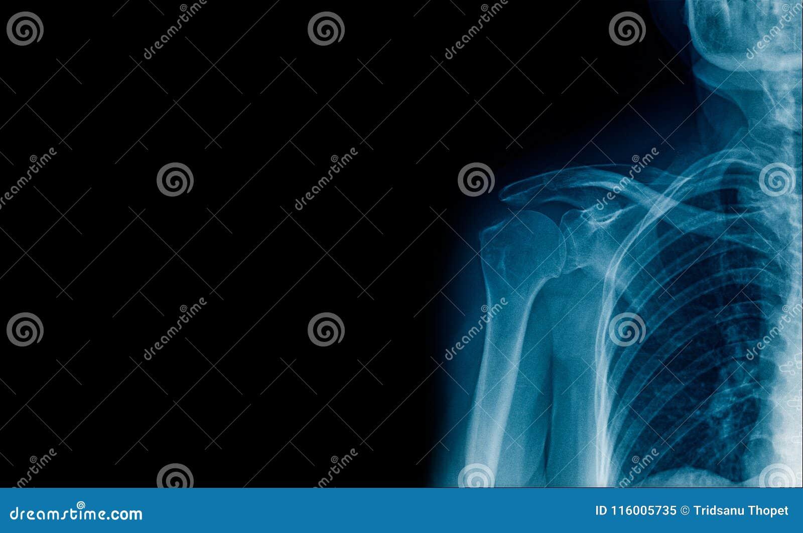 横幅X-射线肩关节