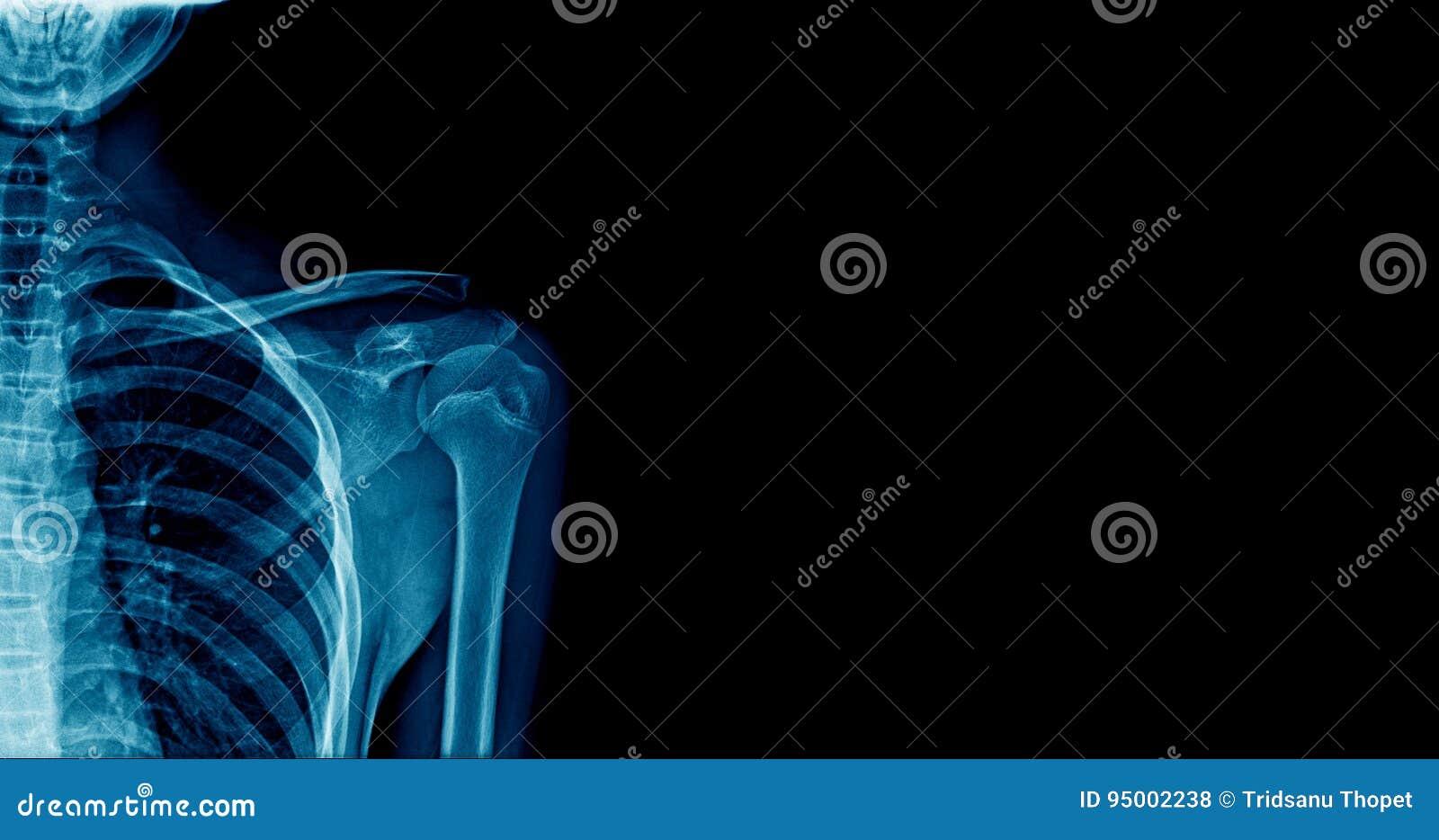 横幅X-射线肩膀