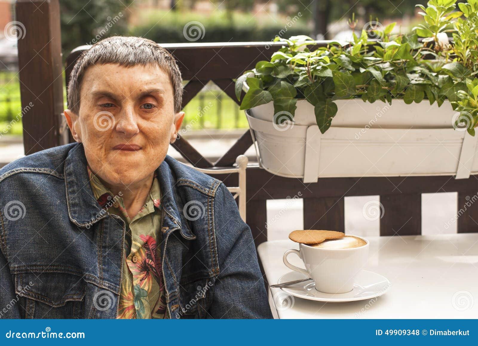 残疾人画象有坐在与咖啡a的室外咖啡馆的大脑麻痹的