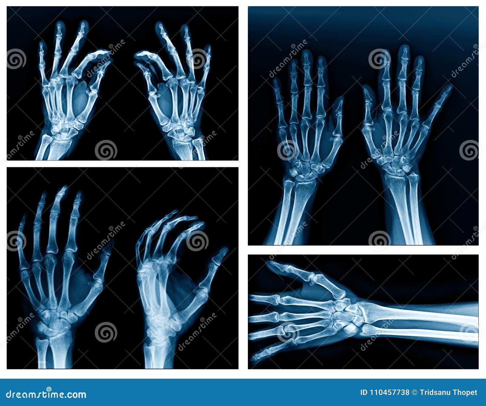 汇集手X-射线