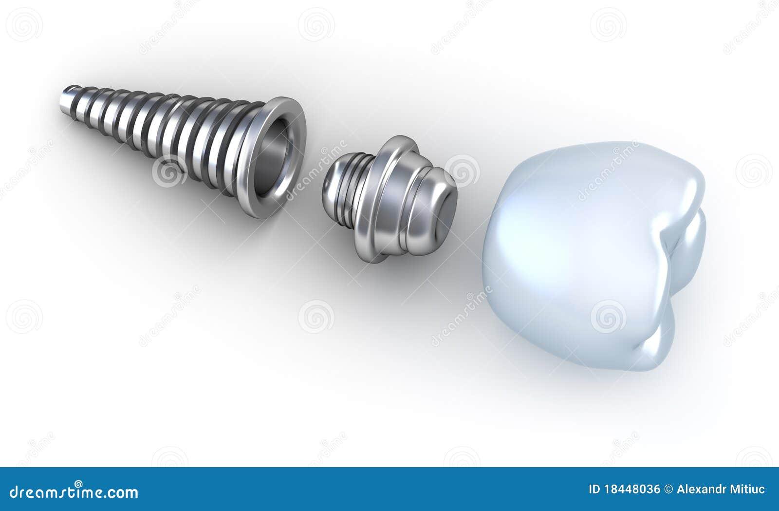 牙插入物位于的表面