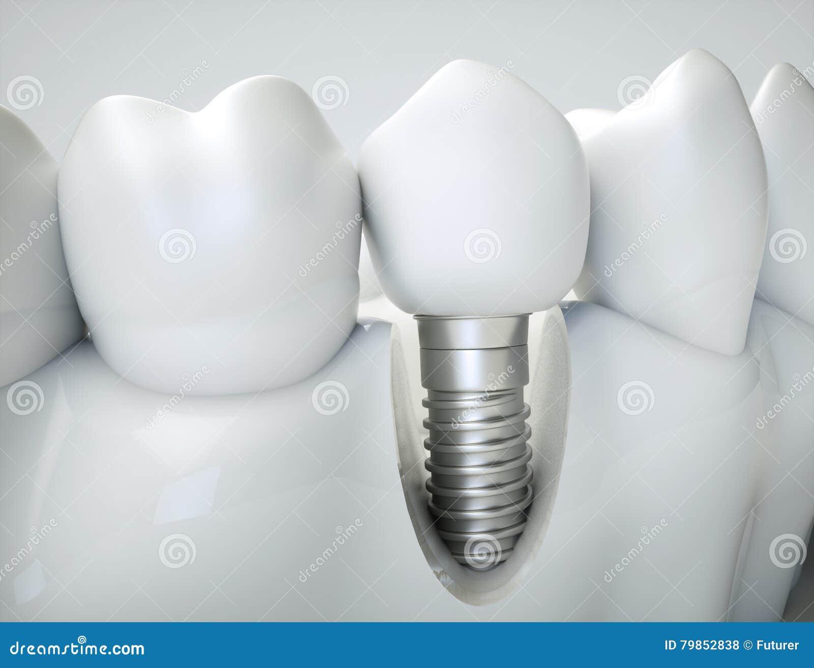 牙插入物- 3d翻译
