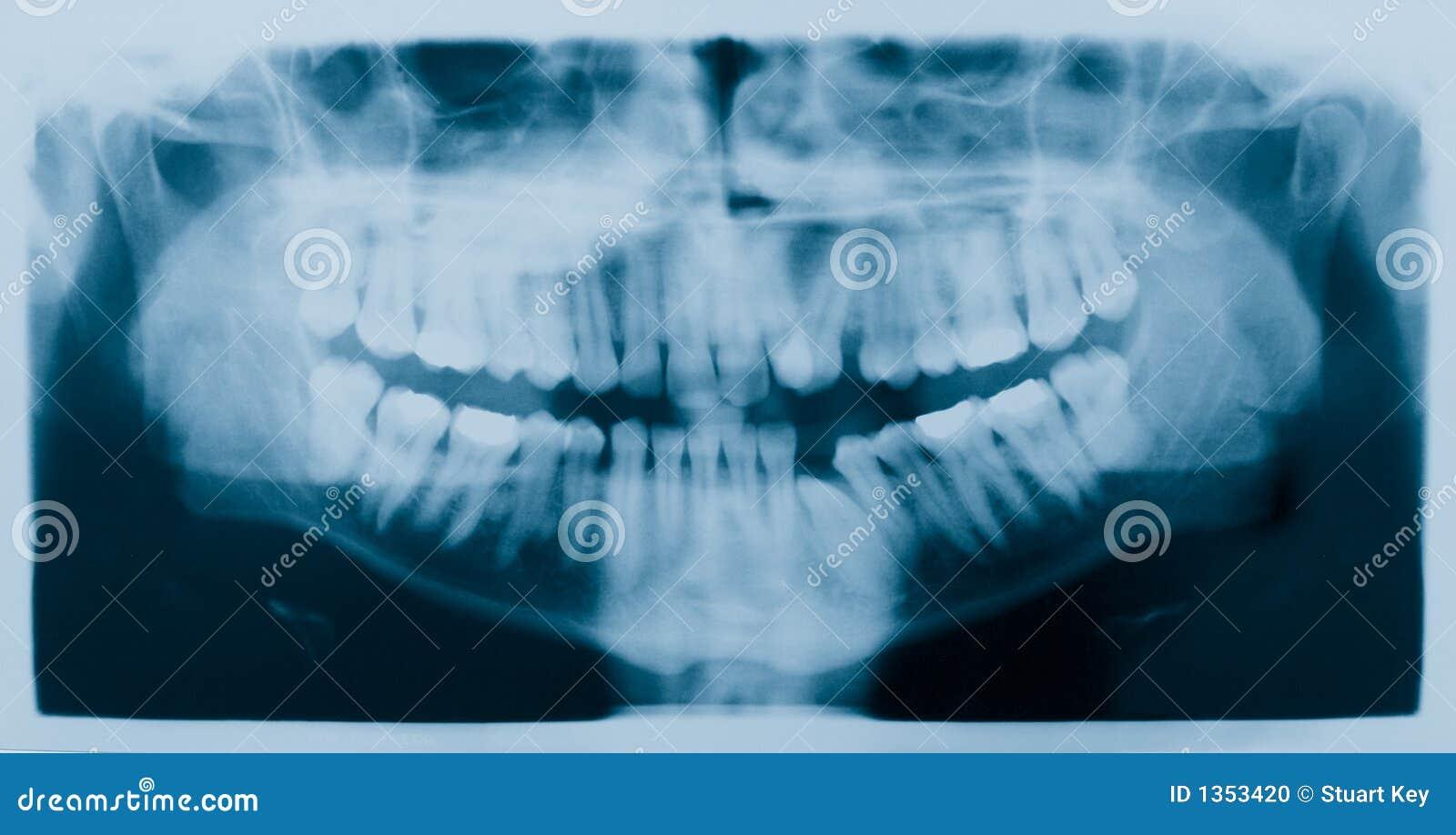 牙齿光芒x X-射线