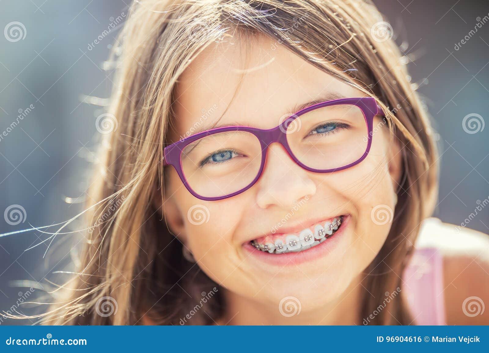 戴牙齿括号和眼镜的愉快的微笑的女孩 年轻逗人喜爱的白种人白肤金发的女孩佩带的牙括号和玻璃