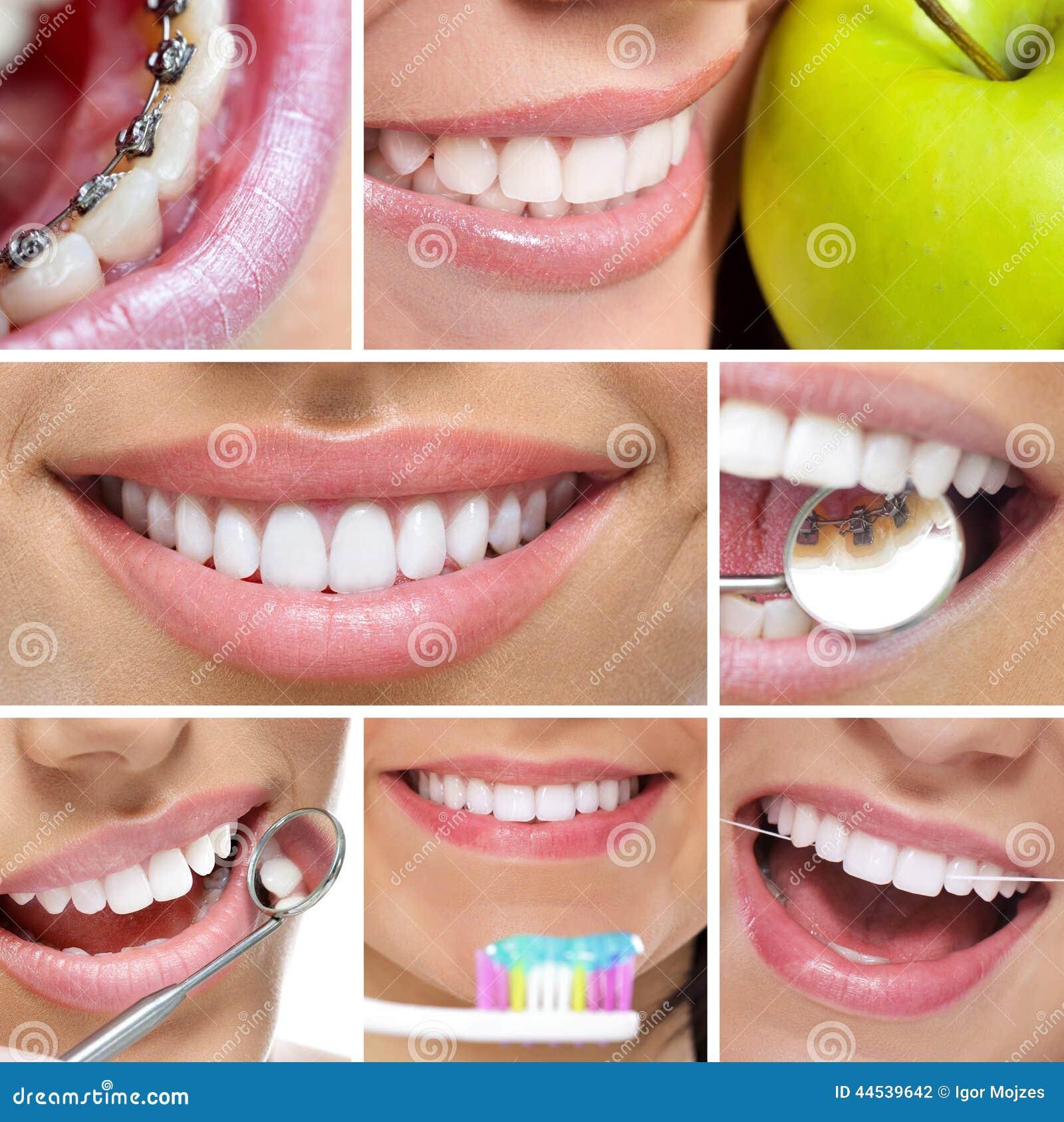 牙齿拼贴画