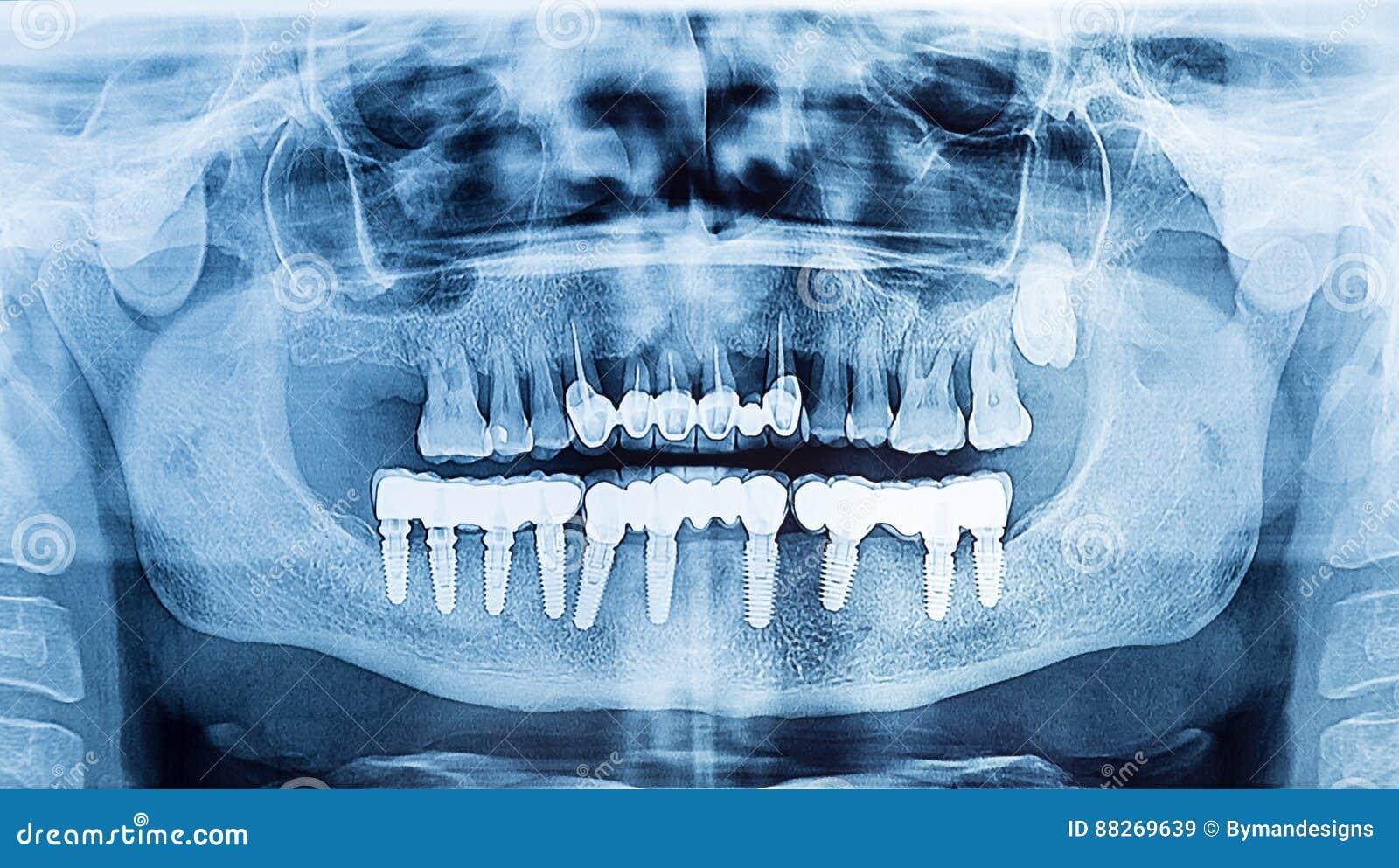 牙齿X-射线全景上部和下颌 赞成牙插入物