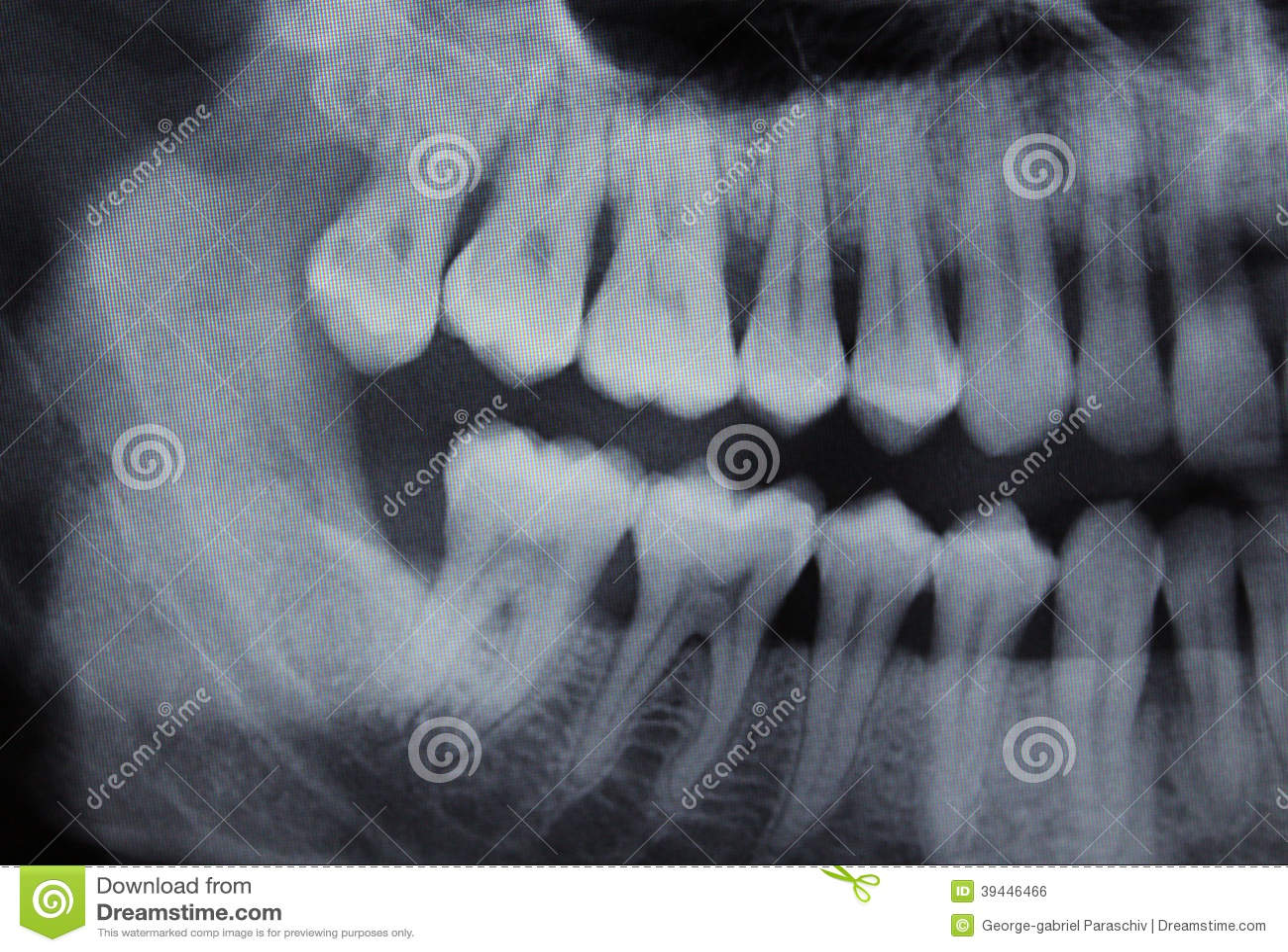 牙齿X-射线左一半