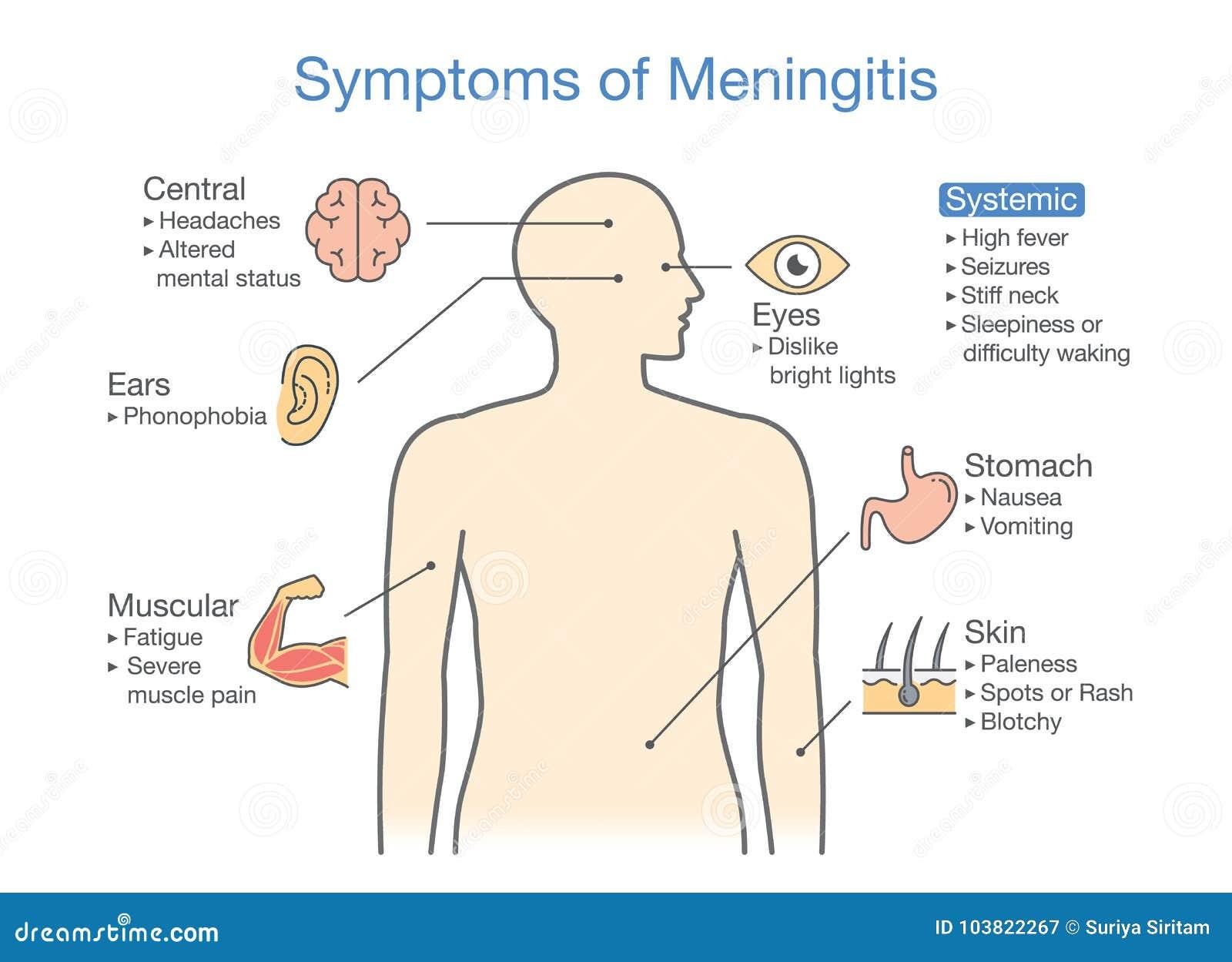 用图解法表示对显示耐心症状以脑膜炎疾病