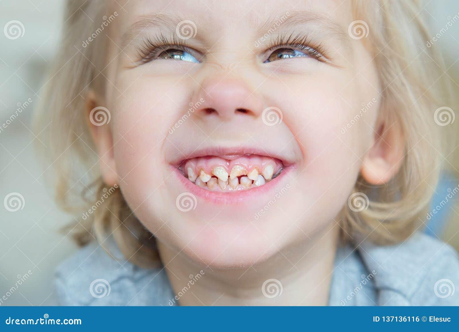 男孩 坏牙